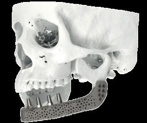Reconstrucción segmentaria de mandíbula