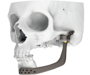Reconstrucción de la articulación temporo-mandibular (ATM)